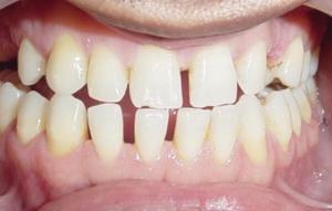 Приснились редкие зубы