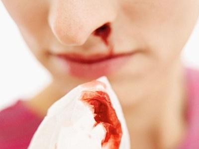 Сонник кровь из носа к чему снится кровь из носа во сне