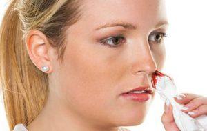 Когда приснилась кровь из носа